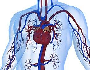 ендоваскулярні втручання